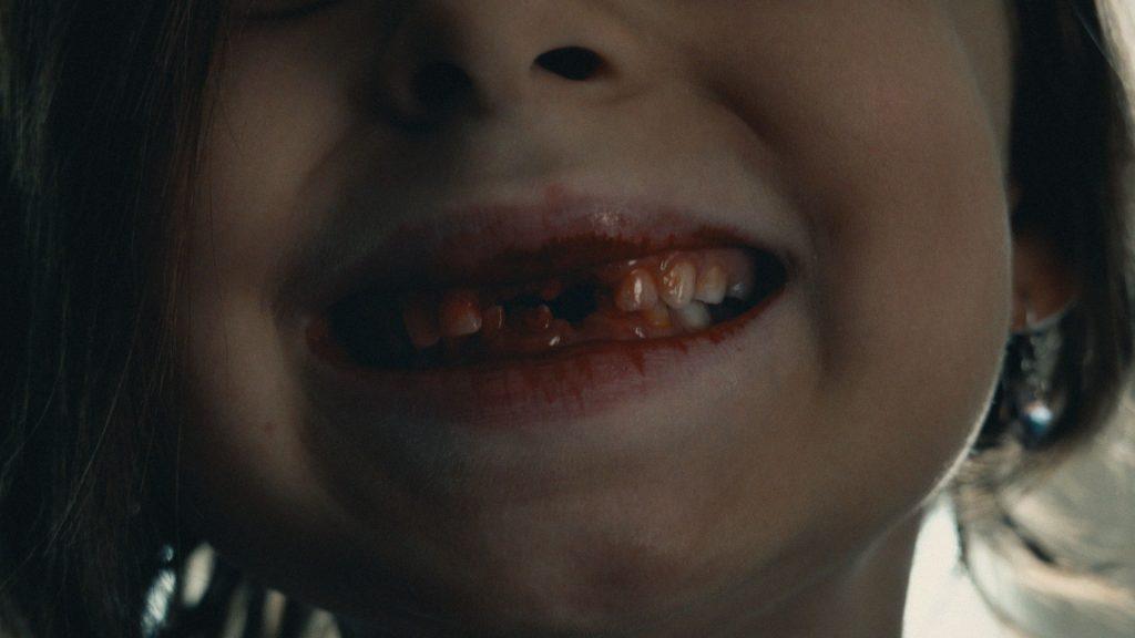 Kruger_Teeth